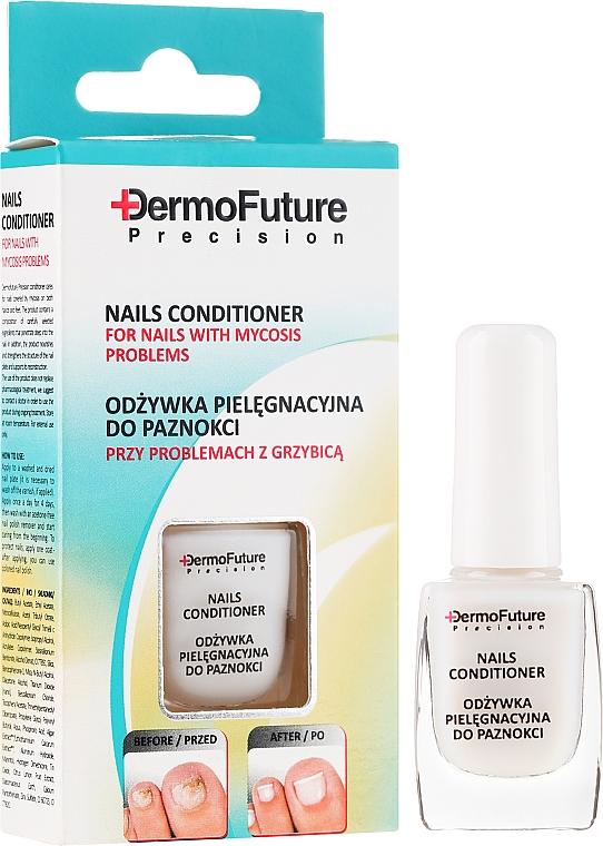 Bálsamo de uñas contra hongos - DermoFuture Course Of Treatment Against Nail Fungus